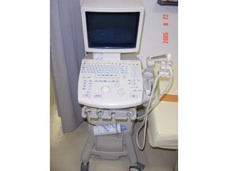 腹部超音波検査器